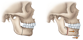 Orthognathic surgery for receding chin