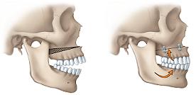 illustration of open bite