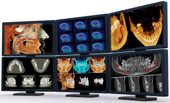 Panoramic x-ray scans